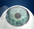 LASIK is a surgical procedure to correct nearsightedness (myopia), farsightedness (hyperopia), and astigmatism